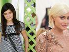 Kylie Jenner: ecco quant'è cambiata