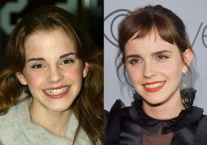 Emma Watson, come è cambiata da Hermione a Bella