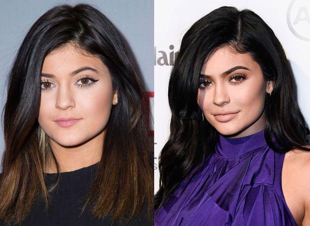 Kylie Jenner ha trasformato due sopracciglia normali in due curatissimi accessori di bellezza.