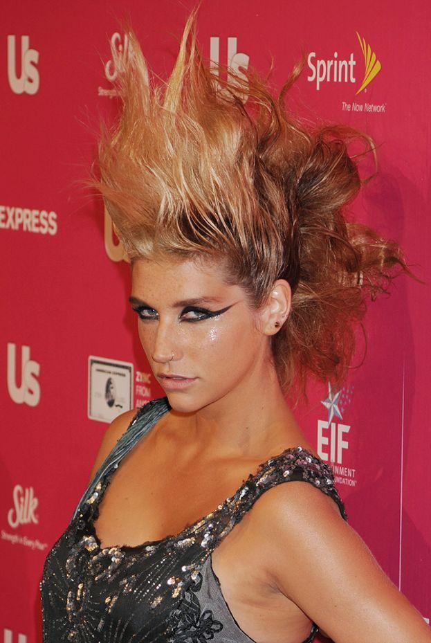 Certi look fanno parte del personaggio, ma ogni tanto a Kesha la situazione sfugge di mano