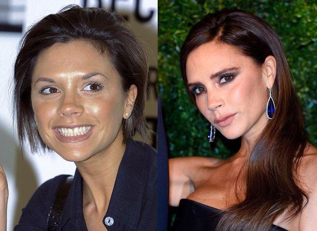 Victoria Beckham nel 2001 aveva due sopracciglia tipo apostrofo lontane 10 centimetri l'una dall'altra O_O